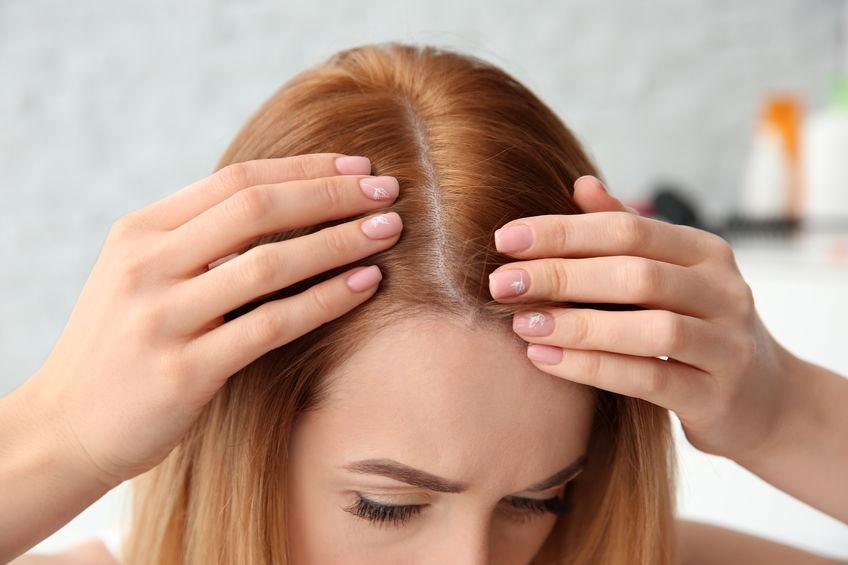 درمان ریزش مو بر اثر تغییرات هورمونی