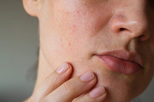 اگر پوستی حساس دارید از این مواد دوری کنید
