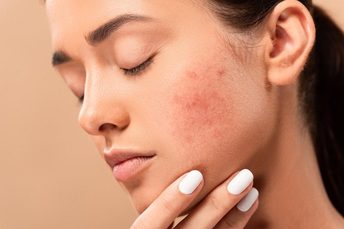 معرفی بهترین ترکیبات مراقبت از پوست برای رفع جای جوش و آکنه