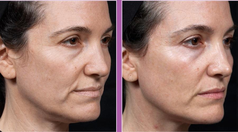 رادیوفرکانسی برای جوانسازی پوست