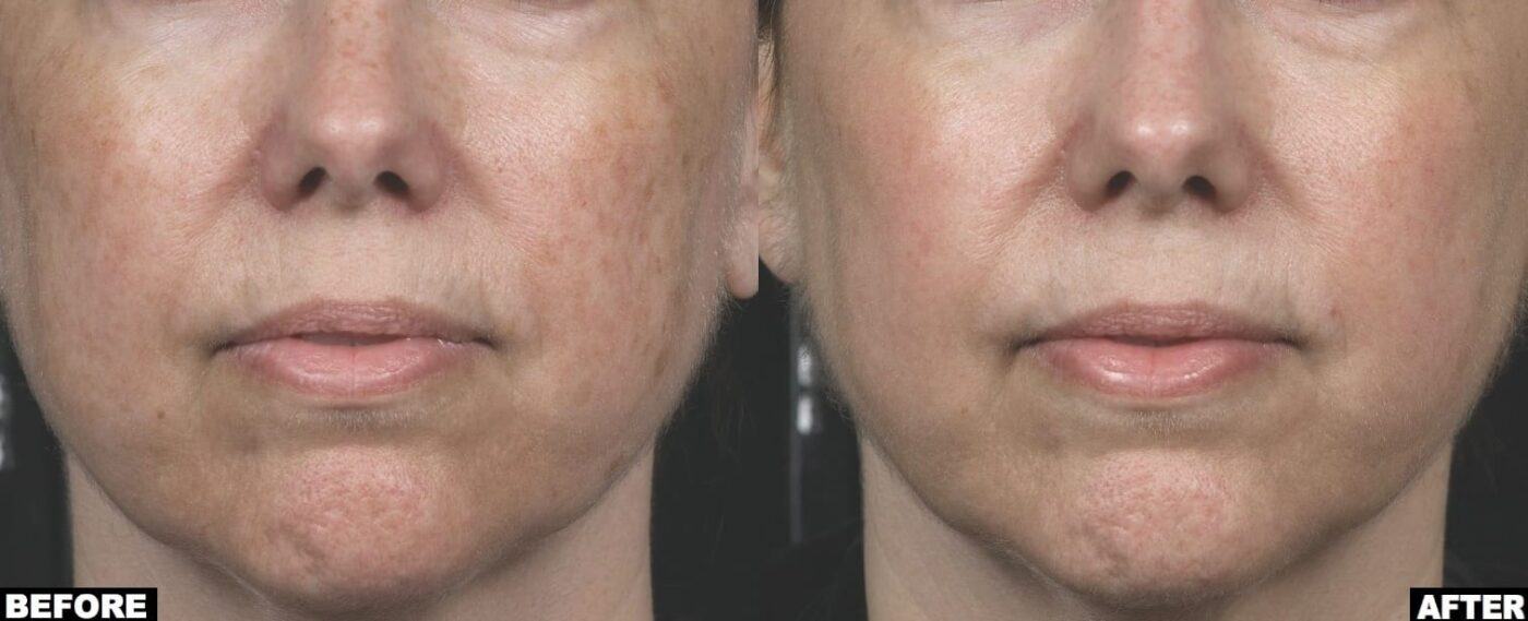 لیزر برای جوانسازی پوست