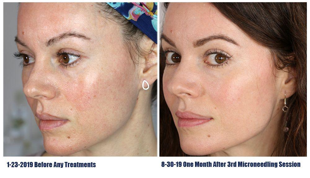 میکرونیدلینگ برای جوانسازی پوست