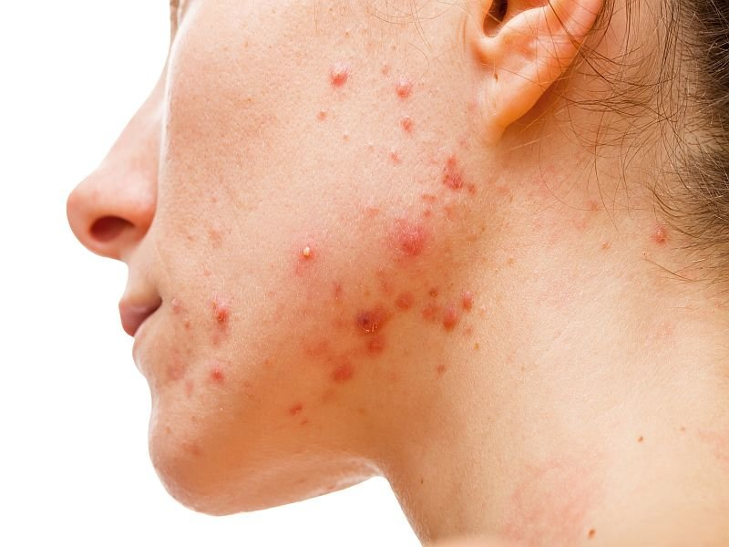 فواید ویتامین سی برای پوست